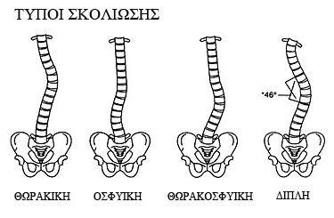 «Σκολίωση: Διάγνωση και αντιμετώπιση» 127809 SKOLIOSI