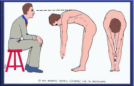 «Σκολίωση: Διάγνωση και αντιμετώπιση» Image55