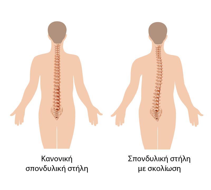 «Σκολίωση: Διάγνωση και αντιμετώπιση» skoliosi2