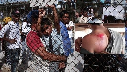 Βίντεο ντροπή από καταυλισμό στην Πάτρα