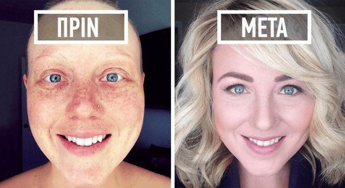 40 φωτογραφίες ανθρώπων πριν και μετά που νίκησαν τον καρκίνο