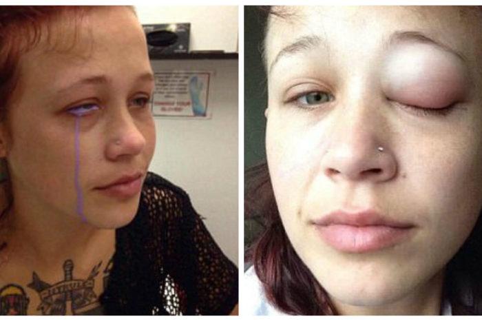 Το ερασιτεχνικό τατουάζ που κόστισε ακριβά σε μια 24χρονη – Ζητά να της αφαιρέσουν το μάτι