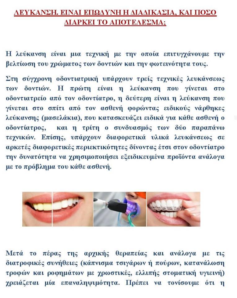 H Oδοντίατρος σας απαντά: «Λεύκανση: Είναι επώδυνη διαδικασία,και πόσο διαρκεί το αποτέλεσμα;» 1 4