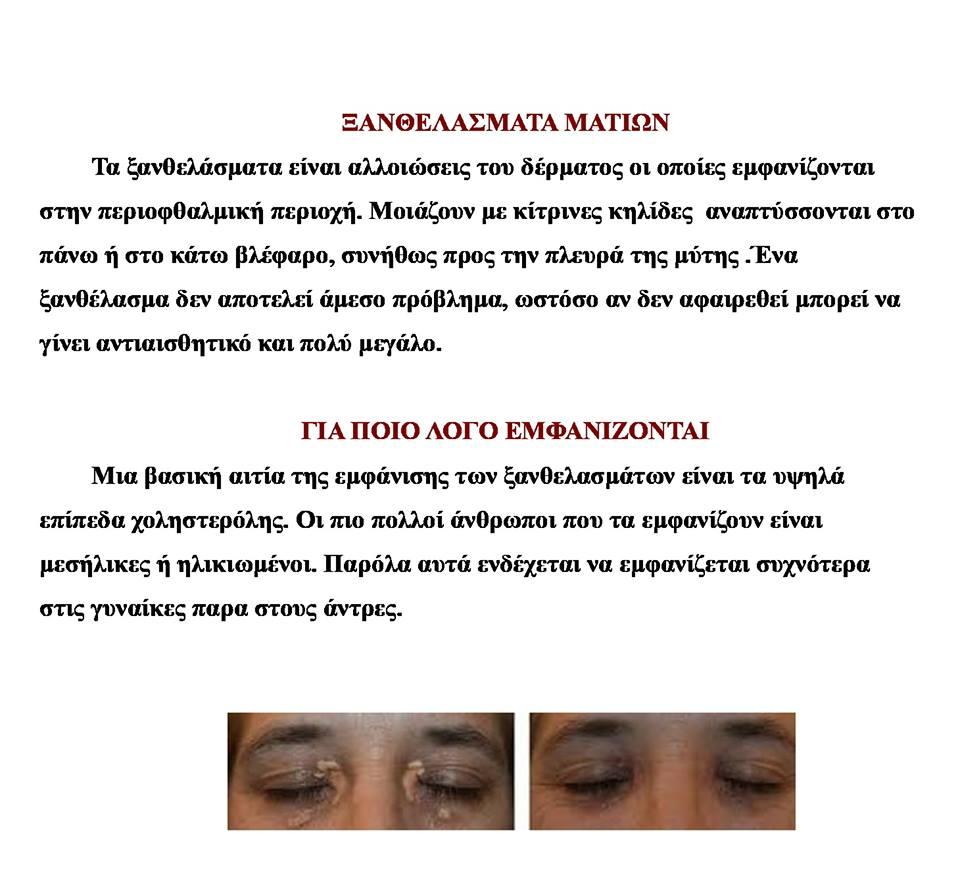 Η Οφθαλμίατρος απαντά:«Τι είναι τα Ξανθελάσματα των ματιών και πως μπορώ να τα αντιμετωπίσω;» 44 1