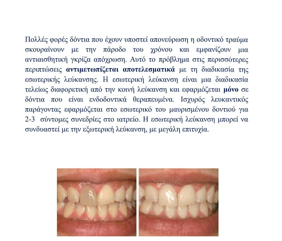 H Oδοντίατρος απαντά: «Έχω ένα δόντι  που έχει μαυρίσει.Μπορώ να κάνω κάτι χωρίς να βάλω θήκη;» 51221340 359226314630302 9190537411308814336 n