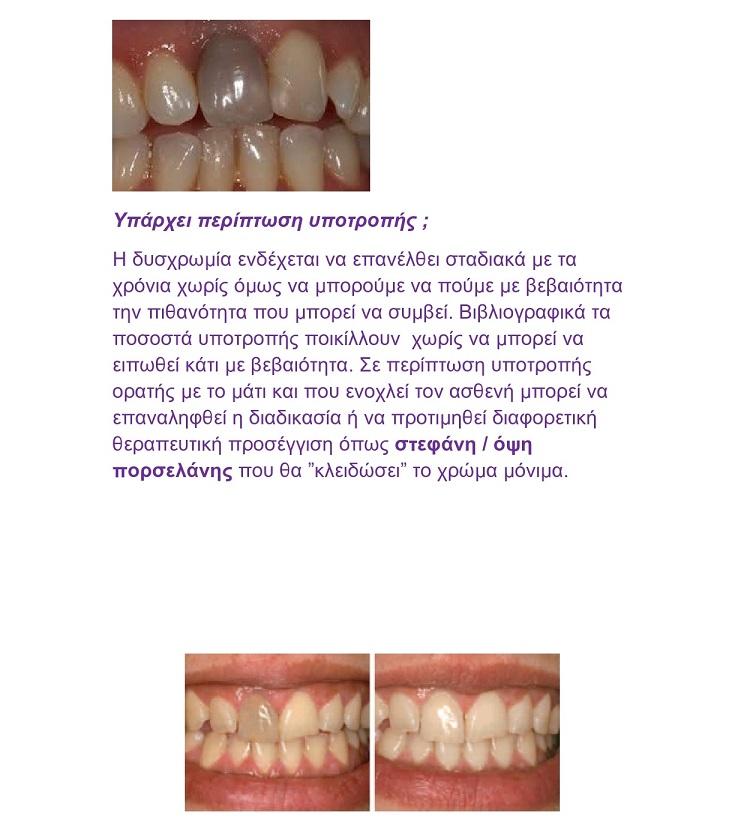 Η οδοντίατρος απαντά:«Τι γίνεται όταν ένα δόντι μαυρίζει; Είναι απαραίτητη η θήκη;»                                                               page0002