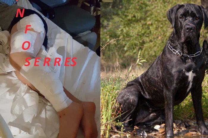 Άγρια επίθεση από σκυλιά σε 9χρονο στις Σέρρες: Δείτε φωτογραφίες με το τραυματισμένο παιδί
