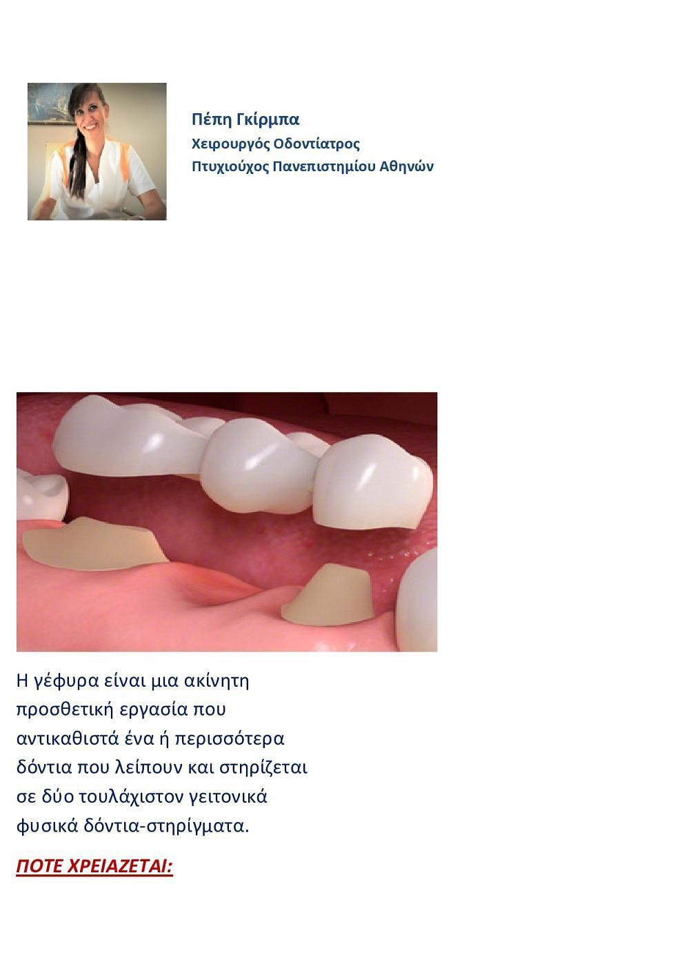 Η οδοντίατρος απαντά:«Τι είναι η Οδοντική Γέφυρα» page0001 1