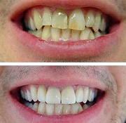 Η Οδοντίατρος απαντά:«Μπορεί το χαμόγελό μου να με κάνει να φαίνομαι νεότερος;» 33